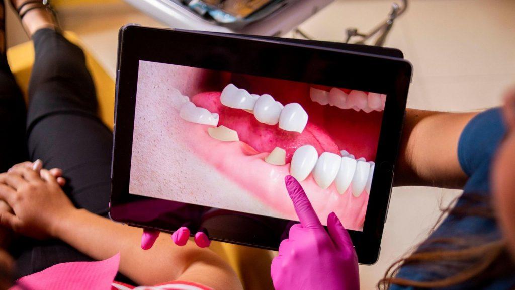Implantes dentales Encías sangrantes Sangrado de encías Clínica de Encías Lima