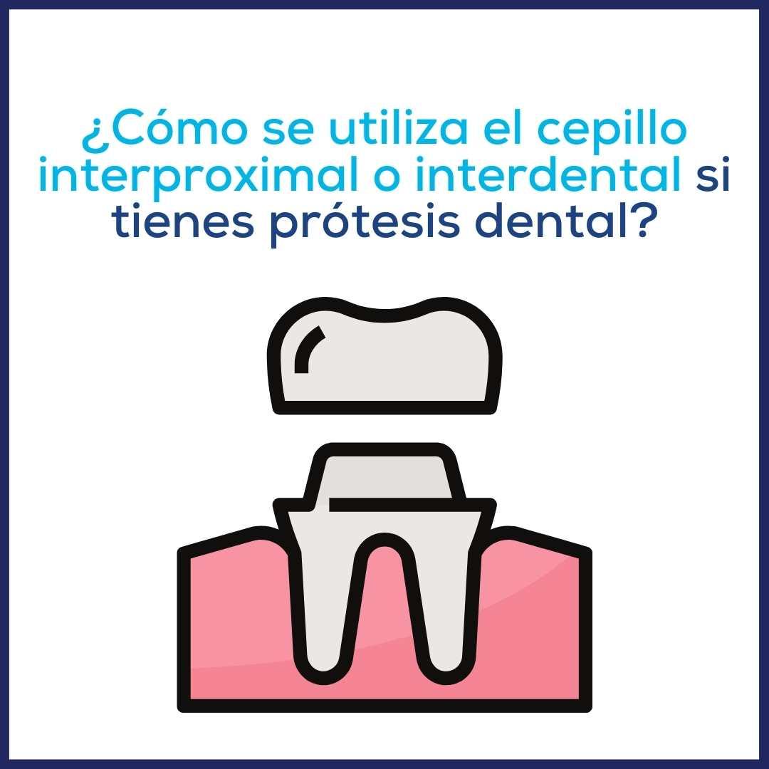 ¿Cómo usar los cepillos interproximales si tienes prótesis dental?